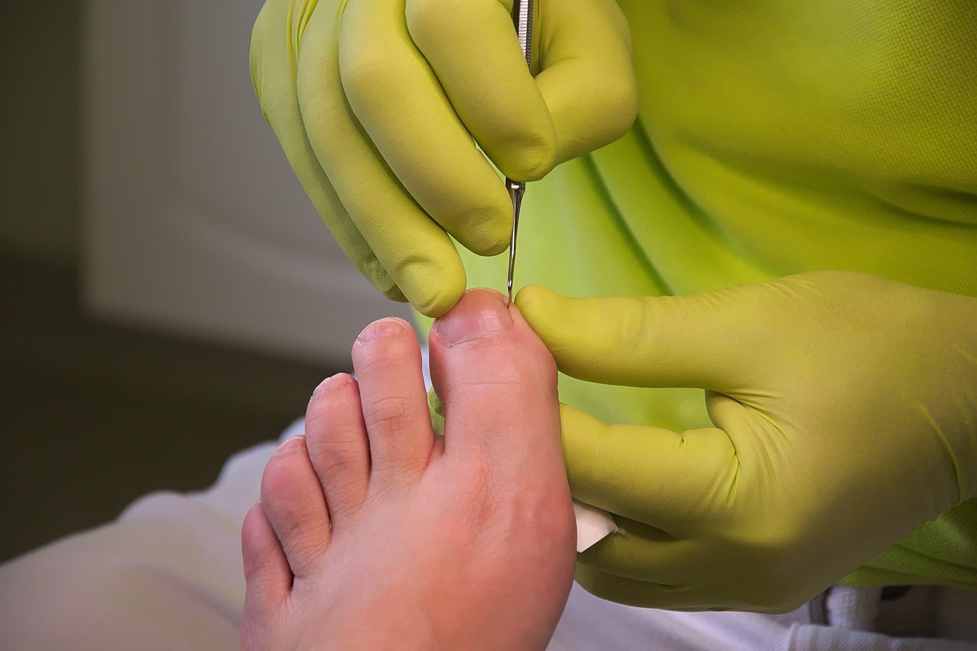 Medizinische Fußpflege Schorndorf